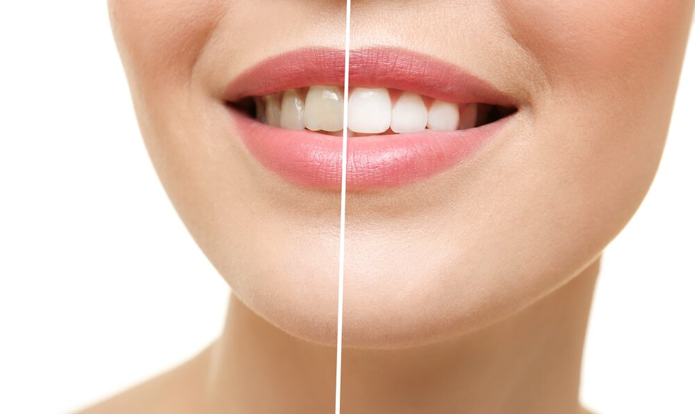 blanqueamiento-dental